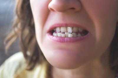Fix Crooked Teeth
