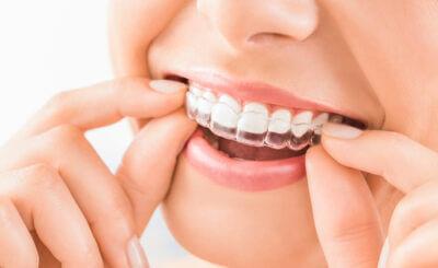 Orthodontics and Invisalign